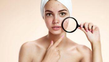 10 сигналов SOS от нашей кожи: как понять, что пора обратиться к специалисту