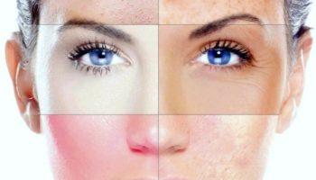 Косметические дефекты кожи лица: маскировка возрастных дефектов