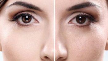 5 способов сократить расширенные поры кожи лица