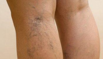 Какие средства помогут предотвратить появление варикозной сеточки на ногах