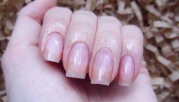 Как вылечить ломкие и слоящиеся ногти с помощью натуральных средств