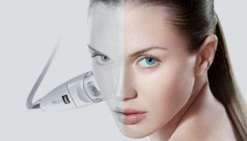 5 проблем кожи, которые легко устранить с помощью лазерной шлифовки