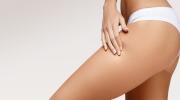 В каких случаях лазер поможет против шрамов и растяжек на коже