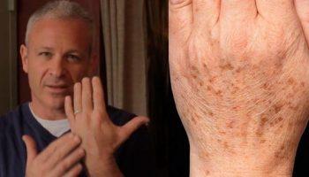 Почему на руках появляются коричневые пигментные пятна и как от них избавиться