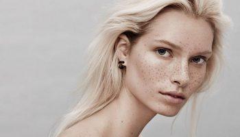 Как победить излишнюю пигментацию кожи лица и почему это нужно сделать до лета