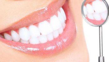 Как отбелить зубы: 5 эффективных и безопасных способов в домашних условиях