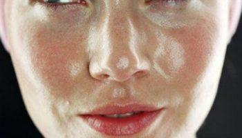 Самые распространенные ошибки в уходе за жирной кожей лица