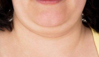 5 способов убрать второй подбородок и заодно подтянуть контуры лица