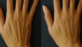 5 способов разгладить и омолодить кожу рук в домашних условиях