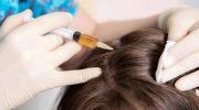 5 фактов, которые стоит узнать, прежде чем отправиться на мезотерапию для волос