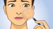 5 ошибок осеннего ухода за сухой и чувствительной кожей