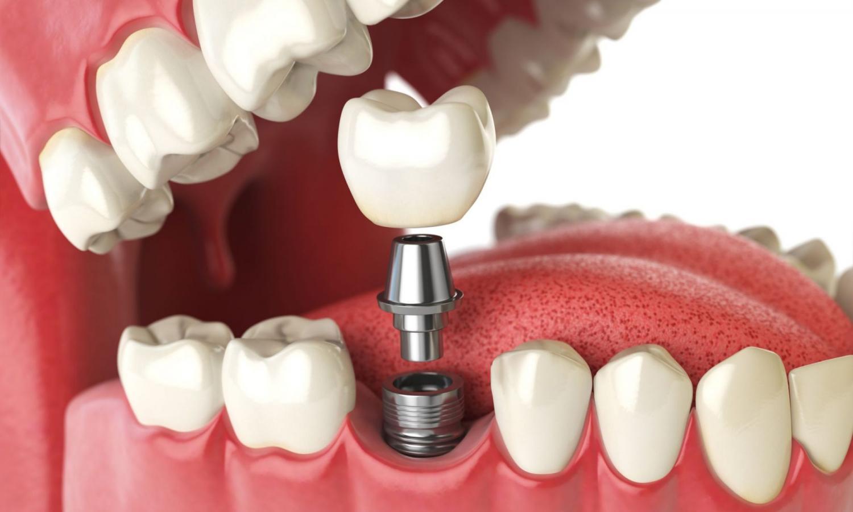 Особенности имплантации зубов