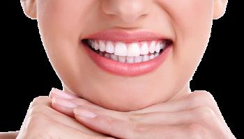 Основные особенности отбеливания зубов