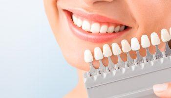 Специфика протезирования зубов CEREC
